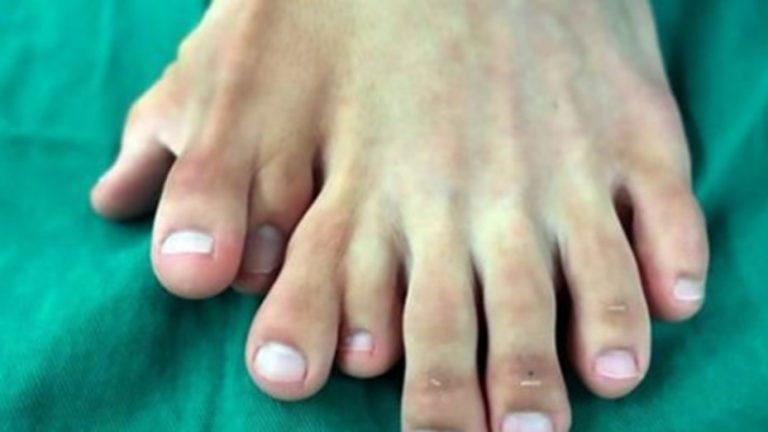 Nació con 9 dedos en uno de sus pies y no lo operaban porque creían que era buena suerte