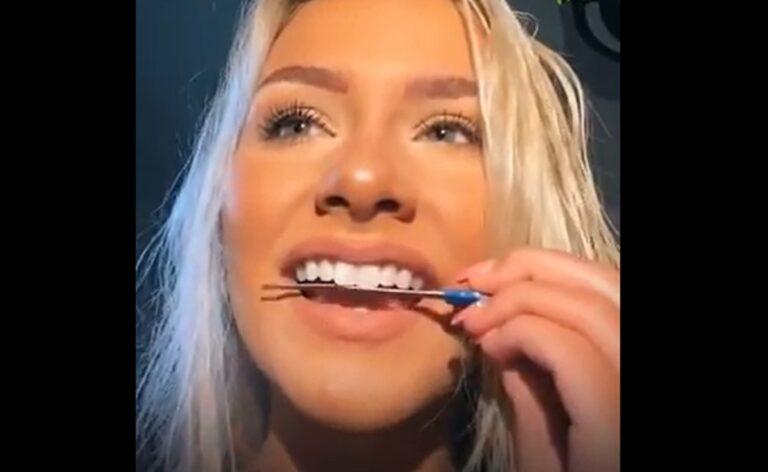 La insólita moda en TikTok que provoca deterioros irreparables en la dentadura