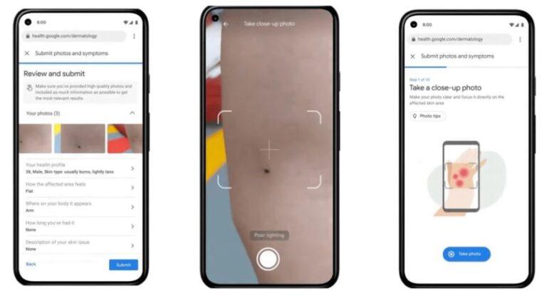 Una aplicación permitirá poder controlar la piel con el teléfono celular